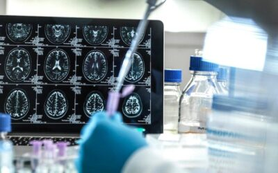 UAE becomes second country to approve new treatment for Alzheimer's disease